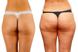 cellulitis benen verminderen